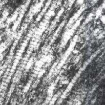 非変性Ⅱ型コラーゲン